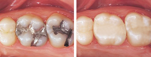 Composite-Fillings